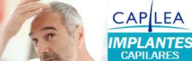 Capilea: implantes capilares recuperacion capilar